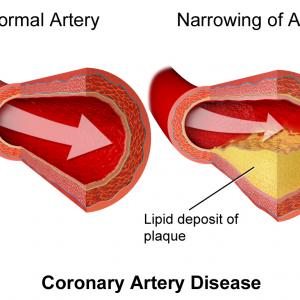 Arteria Obstruida